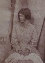 Muotokuva potilaasta, Surrey County Asylum, Dr. Hugh Welch Diamond, 1855.